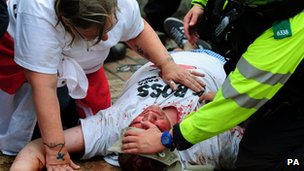 Injured EDL protestor