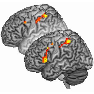 Brain activation in individuals with psychopathy was greater when asked to imagine pain (foreground)