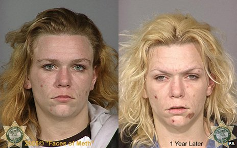 """Before"" and ""After"" pictures of a crystal meth addict"