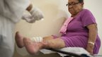 Lucia Feireira Ojamatos, 71, has her bandages changed on her infected legs at the hospital Colonia Antonio Aleixo  in Manaus, Brazil on 17 March 2012