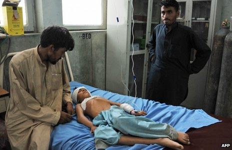 A boy injured in the cemetery blast is treated in hospital in Jalalabad, Afghanistan, 8 August