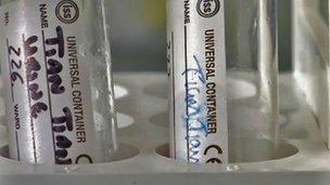 tian tian urine sample