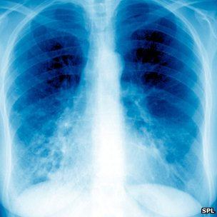 An X-ray of the lungs showing bronchiectasis