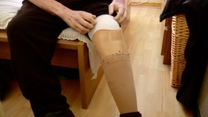 ricky callan leg