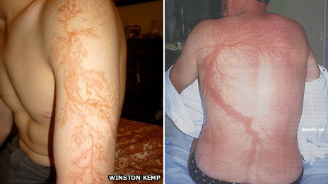 Two photos of men with lightning injuries that look like flower or tree branches