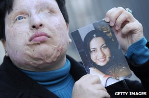 Ameneh Bahrami after her attack holding a picture of what she looked like before