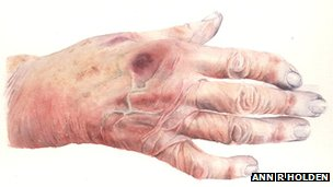 Hand of elderly patient with cardiac failure