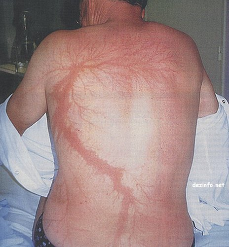 A man's back with lightning injuries that look like flower or tree branches