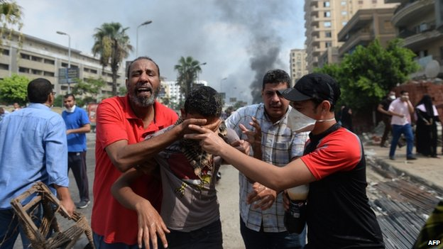 Protesters hold the face of a young man apparently affected by tear gas in Cairo clashes between security forces and supporters of ousted president Mohammed Morsi on 14 Aug 2013.