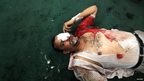 An injured protester who supports ousted Egyptian President Mohammed Morsi lies inside a mosque in Ramses Square in Cairo, 16 August, 2013.