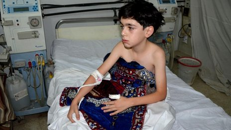 A boy, affected by what activists say is nerve gas, is treated at a hospital in the Duma neighbourhood of Damascus August 21, 2013