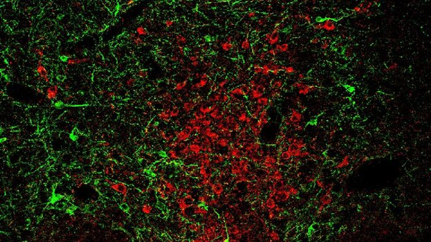 The red neurons are stained serotonin neurons and the green cells are the optogentic probe expressing GABAergic neurons.