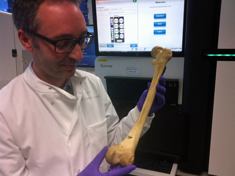 Michael Simpson holds a femur of a similar age to Merrick's
