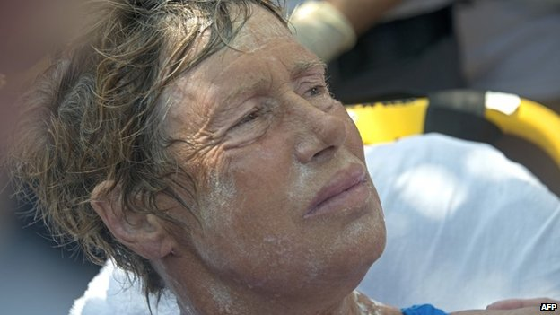 Diana Nyad receives medical treatment at Key West, Florida, on 2 September 2013