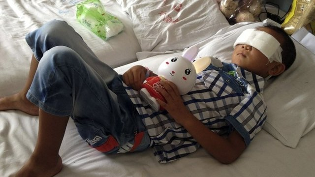 In this Aug. 28, 2013 file photo, Guo Bin lies on a bed in a hospital as he recuperates from an attack in the rural area of Linfen city