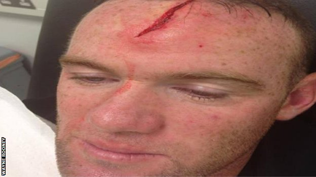 Wayne Rooney Injury BBC Sport Wayne Rooney posts head injury picture after England
