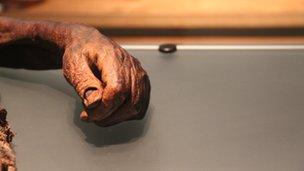 bog hand