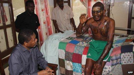 Zanzibar President Ali Mohamed Shein (Bottom L) talks to acid attack victim Joseph Anselm Mwangamba (R) in hospital in Zanzibar (14 September 2013)