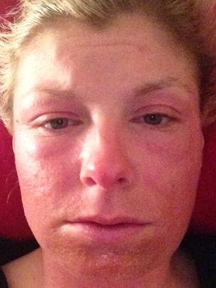 methylisothiazolinone allergy #10