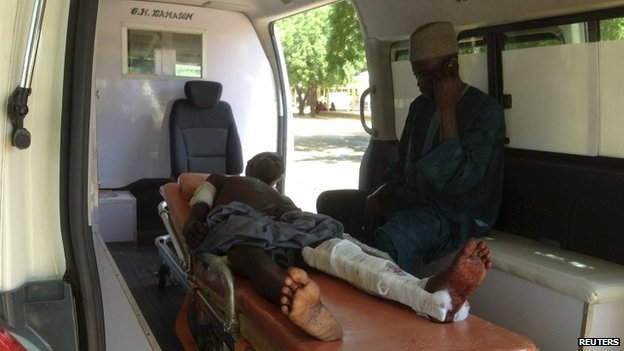 A man who was injured in an attack on a college in Gujba by suspected Islamic militants, lies on a stretcher in an ambulance at the Federal Medical Centre, Nguru, Yobe state -30 September 2013