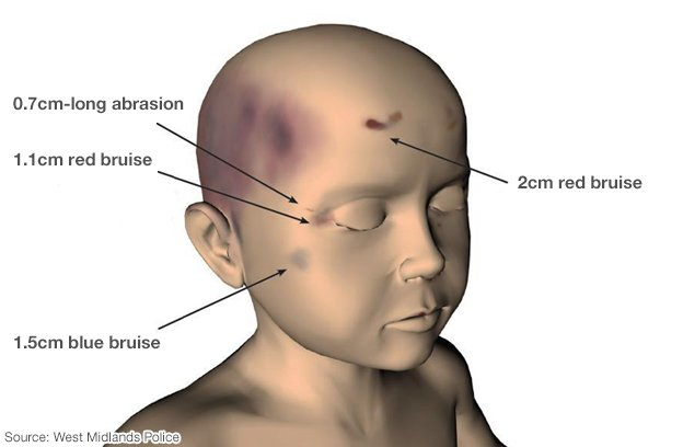 Computer-generated image showing four injuries to Keanu's head