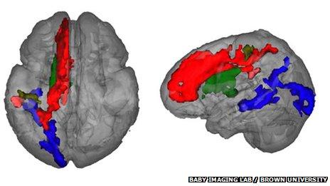 Regions of the brain that show leftward asymmetry of myelin