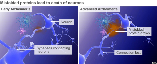 Alzheimer's graphic