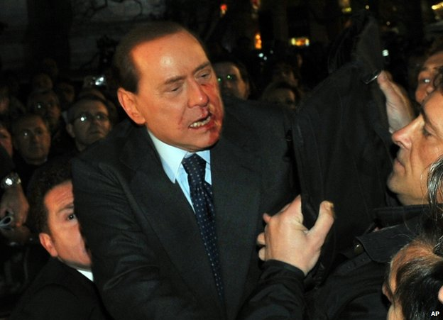 Silvio Berlusconi after being attacked in Milan, 13 December 2009