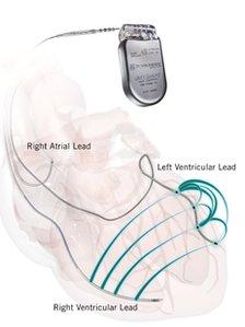 Allure Quadra pacemaker