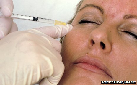 Botox facelift