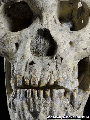 The face of Dmanisi Skull 5