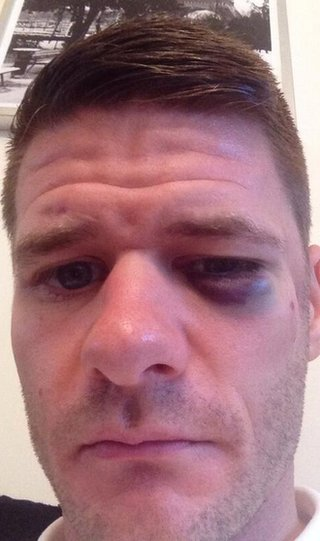 Michael Nelson's picture of his black eye