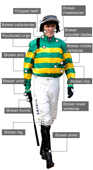 AP McCoy's injuries