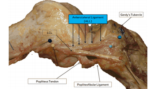 Anterolateral ligament of knee