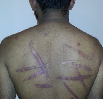 This man says he was branded