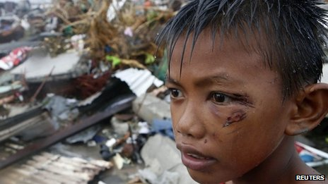 Injured boy stands in ruins of family home - 10 November