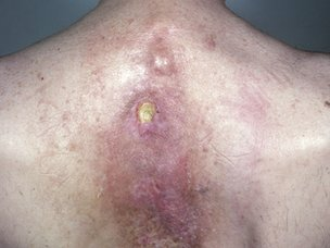 Radiation dermatitis