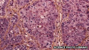 Cells taken from an oesophagus cancer patient