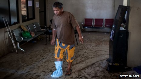A man with a makeshift plaster on his foot hobbles through a waiting room