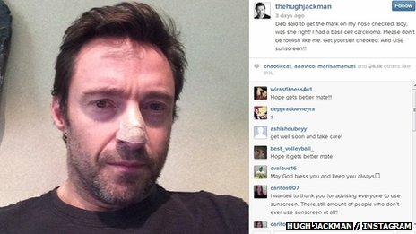 Hugh Jackman on Instagram