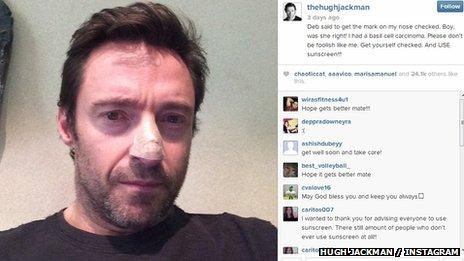 Hugh Jackman on Instagram