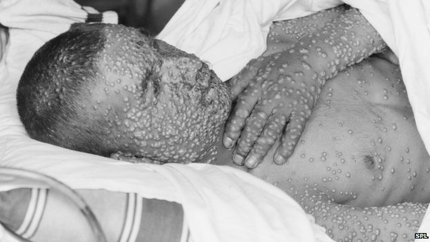 Man with smallpox