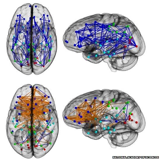 Cerebro de hombres vs mujeres