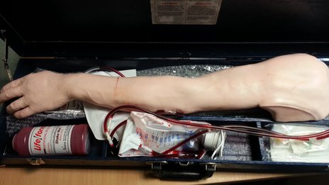 Medical prosthetic arm