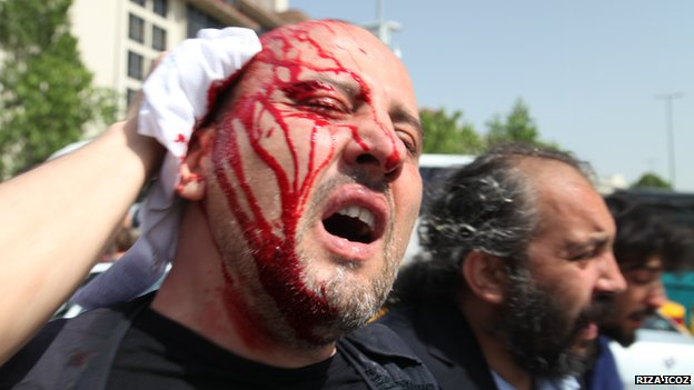 Ahmet Sik hit on the head by a teargas