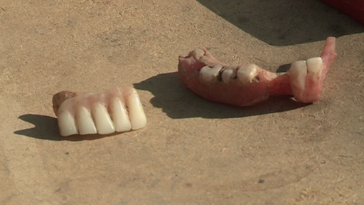 Dentures on the street