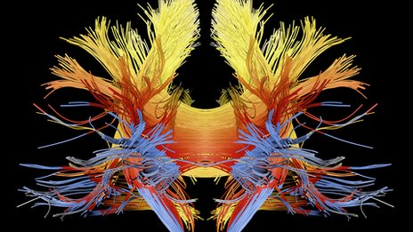 White matter fibres - computer enhanced image