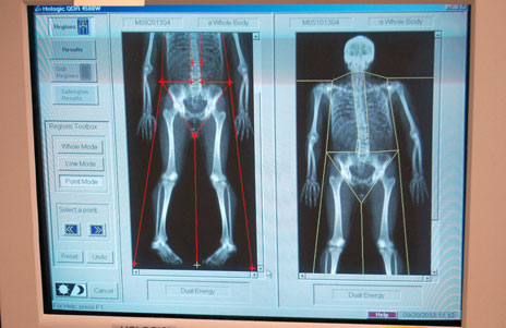Dexa images on screen