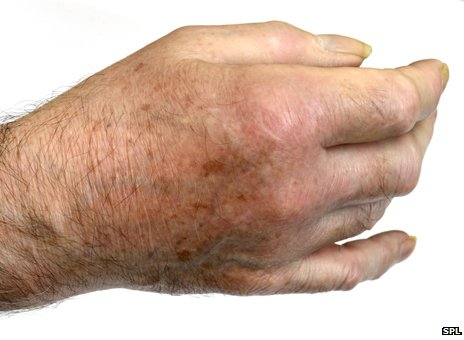 Gout-affected hand