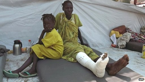 A girl sits next to a wounded relative after she received treatment at the Malakal Hospital in the Upper Nile State of South Sudan